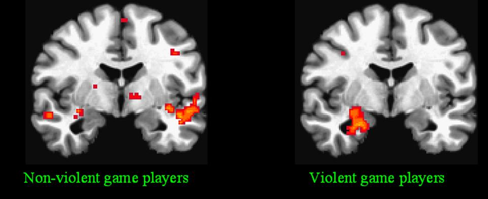 Brain-of-Violent-Game-Players